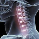 Neck Injury Treatment